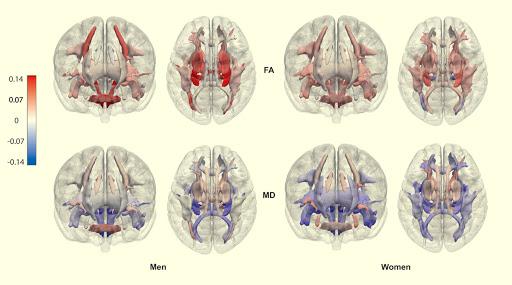 Berita Kesehatan 2021: Beberapa Lemak Tubuh Penggaruhi Otak